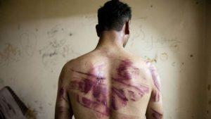 Tortured Syrian